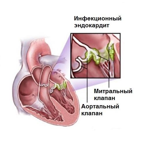 Бактериальный инфекционный эндокардит: причины и симптомы, лечение