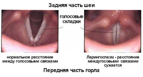 laringospazm (1)