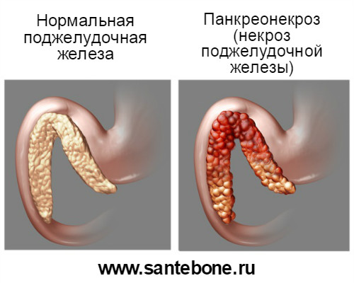 панкреонекроз и курение