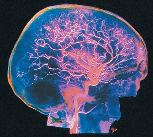 gipoplaziya-pozvonochnoj-mozgovoj-arterii (1)