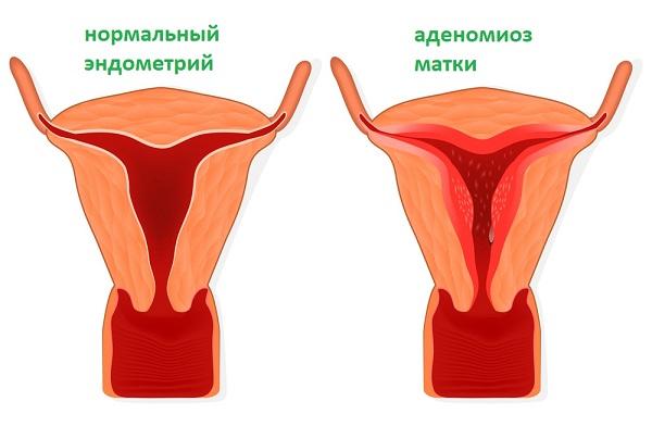 Что такое аденомиоз матки: как это лечится, формы, причины и признаки заболевания