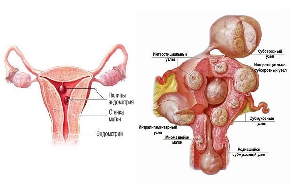 Аденомиоз матки (гиперплазия эндометрия): фото, что это такое доступным языком, симптомы, причины и способы лечения