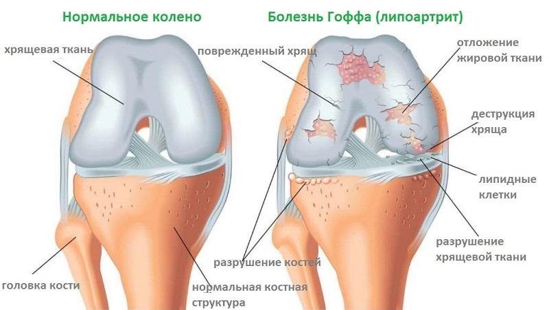 патолгические изменния в суставе при болезни Гоффа
