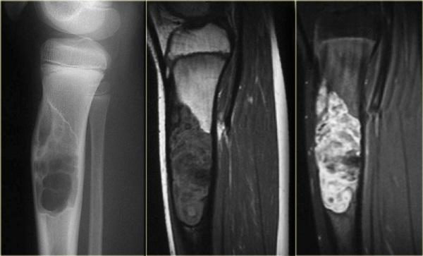Фиброзная дисплазия большеберцовой кости у подростка