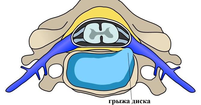 межпозвоночная грыжа диска пояснично-крестцового отдела позвоночника