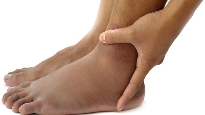 симптомы ахиллобурсита на фото