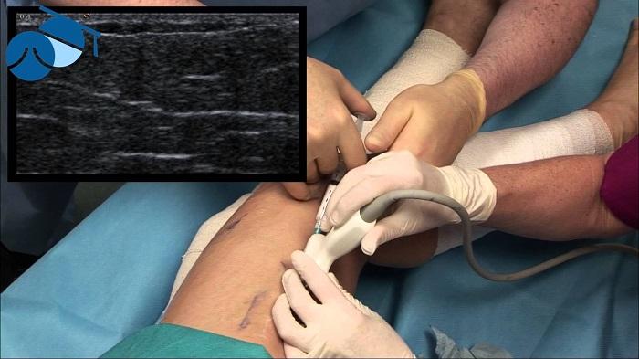 сканирвоание глубоких вен при варикозе