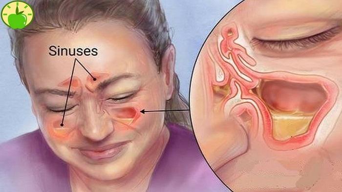 Болит голова в области глазниц и переносицы thumbnail