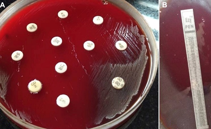 посев мазка из зхева для опредление чувствительности микрофлоры